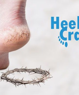 what causes dry cracked heels