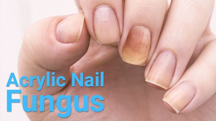 How to get rid of acrylic nail fungus
