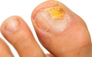 fungal nail of feet